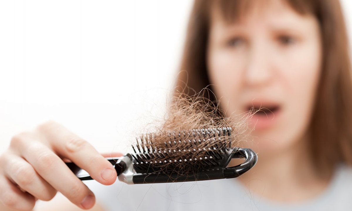 Hair Loss Is Also The Symptom Of Coronavirus-వామ్మో.. జుట్టు రాలడం కూడా కరోనా లక్షణమేనట-General-Telugu-Telugu Tollywood Photo Image-TeluguStop.com