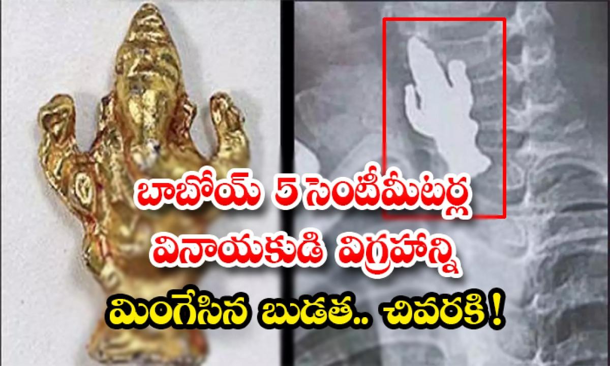 3 Year Old Boy Swallows 5 Cm Long Ganesha Idol In Bengaluru-బాబోయ్ 5 సెంటీమీటర్ల వినాయకుడి విగ్రహాన్ని మింగేసిన బుడత.. చివరకి -General-Telugu-Telugu Tollywood Photo Image-TeluguStop.com