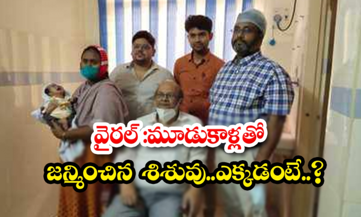 Viral A Baby Born With Three Legs Where-TeluguStop.com