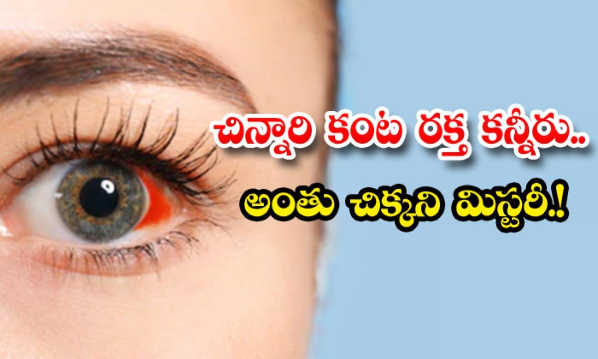 Tears In A Childs Eyes An Elusive Mystery-చిన్నారి కంట రక్త కన్నీరు.. అంతుచిక్కని మిస్టరీ-General-Telugu-Telugu Tollywood Photo Image-TeluguStop.com