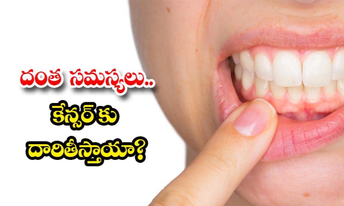 Can Poor Mouth Hygiene Leads To Mouth Cancer-దంత సమస్యలు.. కేన్సర్కు దారితీస్తాయా-Latest News - Telugu-Telugu Tollywood Photo Image-TeluguStop.com