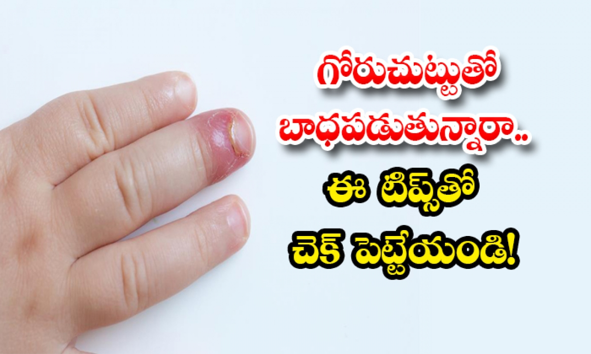 Home Remedies To Get Rid Of Paronychia-TeluguStop.com