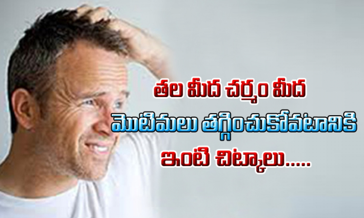 How To Treat Scalp Pimples-తల మీద చర్మం మీద మొటిమలను తగ్గించుకోవటానికి ఇంటి చిట్కాలు-Telugu Health-Telugu Tollywood Photo Image-TeluguStop.com