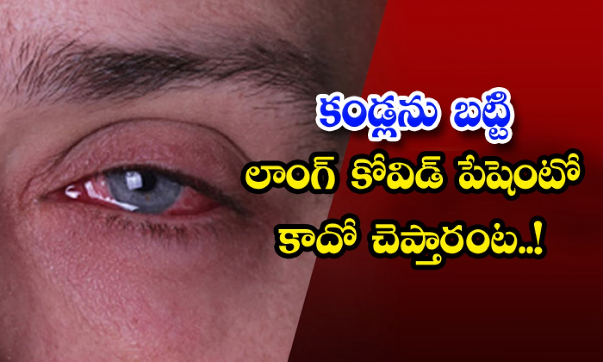 Long Covid Patient Eyesight Symptoms-కండ్లను బట్టి లాంగ్ కోవిడ్ పేషెంటో కాదో చెప్తారంట..-General-Telugu-Telugu Tollywood Photo Image-TeluguStop.com