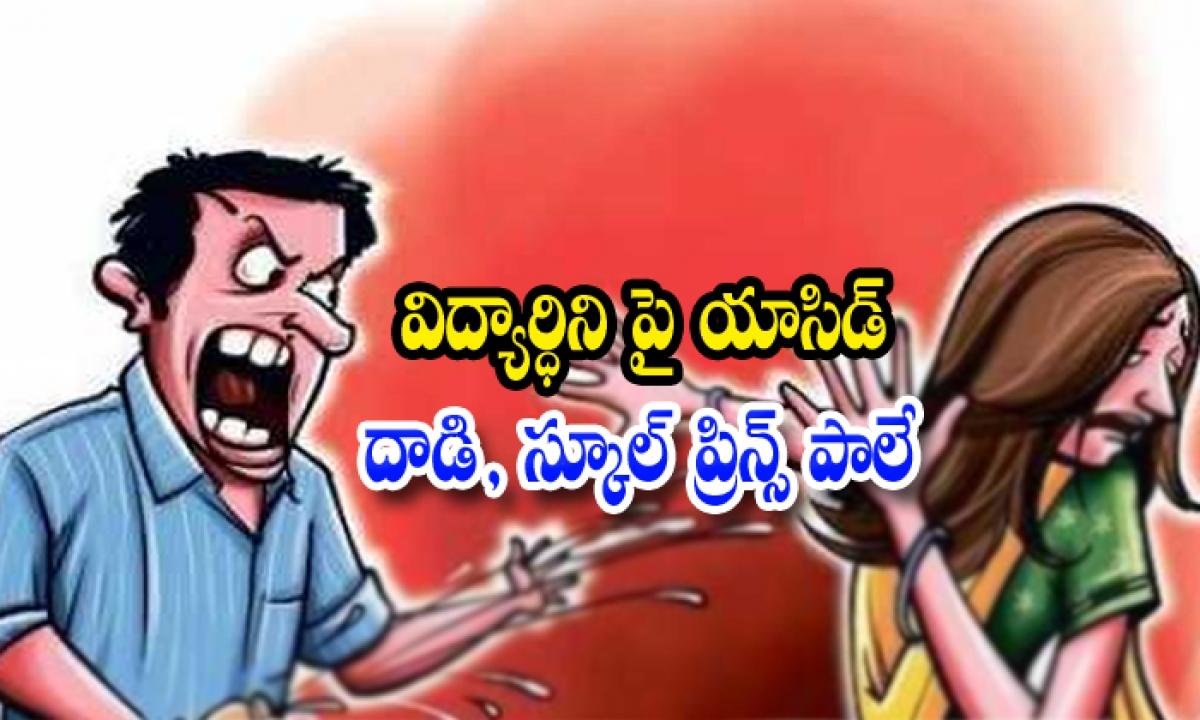 Principal Attacked On Student-విద్యార్థిని పై యాసిడ్ దాడి, స్కూల్ ప్రిన్స్ పాలే-Telugu Crime News(క్రైమ్ వార్తలు)-Telugu Tollywood Photo Image-TeluguStop.com