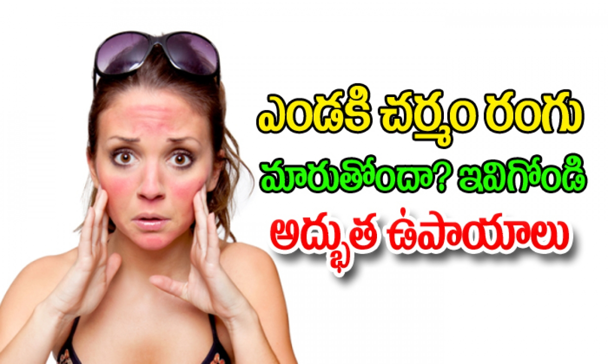Sun Burn Prevention And Cure-TeluguStop.com