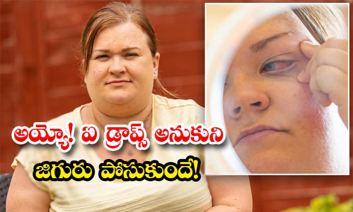 Uk Women Poured Glue In Her Eyes By Mistake-అయ్యో ఐ డ్రాప్స్ అనుకుని జిగురు పోసుకుందే-General-Telugu-Telugu Tollywood Photo Image-TeluguStop.com