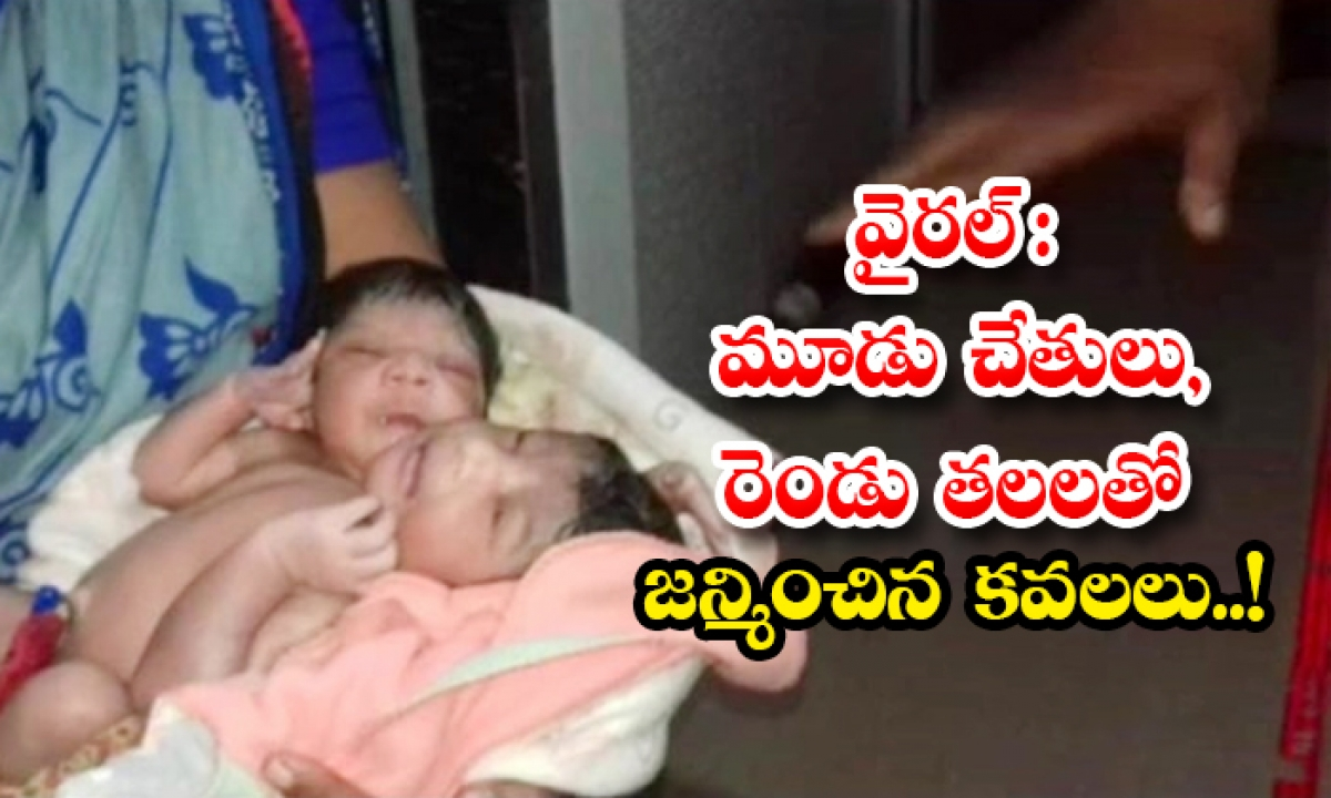 Abnormal Twins With Three Hands And Two Heads Born In Odisha-TeluguStop.com