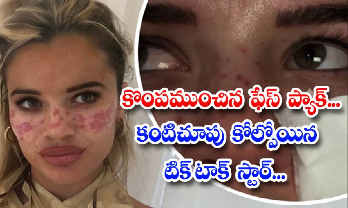 Big Brother Star Hospitalised After Reaction To Tiktok Beauty Hack-కొంపముంచిన ఫేస్ ప్యాక్… కంటి చూపు కోల్పోయిన టిక్ టాక్ స్టార్-Latest News - Telugu-Telugu Tollywood Photo Image-TeluguStop.com