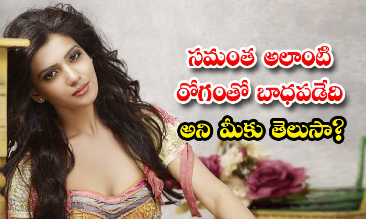 Did You Know That Samantha Suffers From Skin Allergy-TeluguStop.com