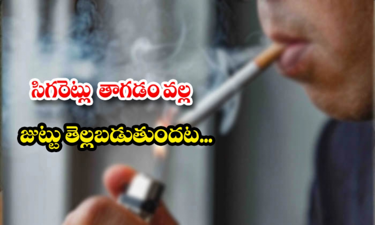 Hair Is Getting White For Cigarette Smoking-TeluguStop.com