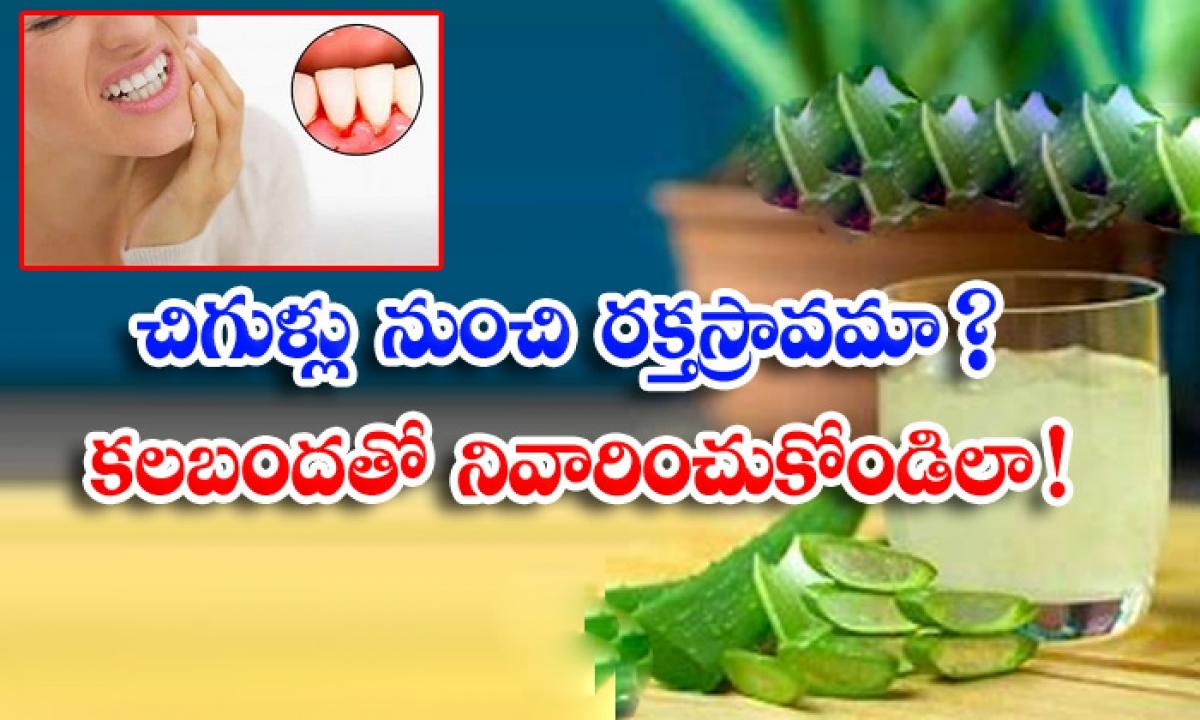 Home Remedies Bleeding Gums Aloe Vera Latest News Health Tips-చిగుళ్ల నుంచి రక్తస్రావమా కలబందతో నివారించుకోండిలా-Latest News - Telugu-Telugu Tollywood Photo Image-TeluguStop.com