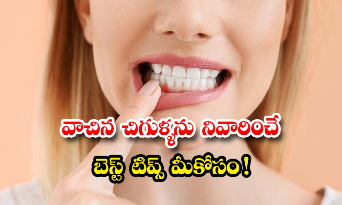 Home Remedies For Get Rid Of Swollen Gums-TeluguStop.com