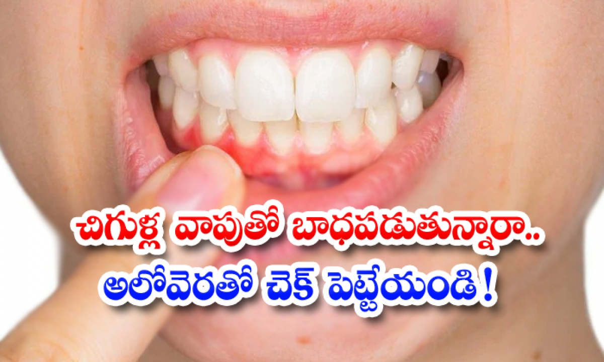 Home Remedies For How To Reduce Swollen Gums-TeluguStop.com
