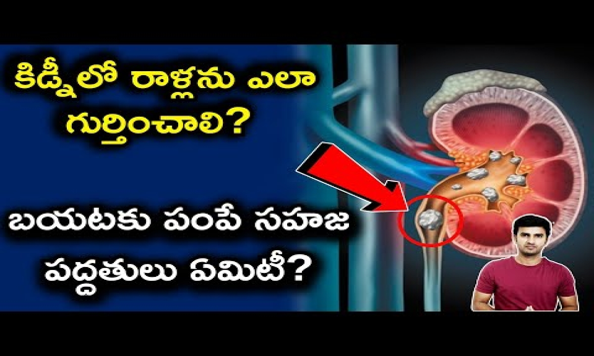 Kidney Stones Symptoms And Natural Remedies To Cure At Home |telugu Facts |-TeluguStop.com