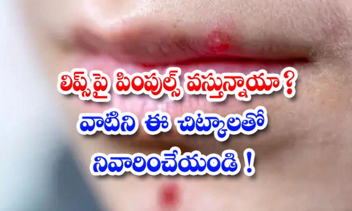 Home Remedies To Reduce Pimples On Lips-లిప్స్పై పింపుల్స్ వస్తున్నాయా వాటిని ఈ చిట్కాలతో నివారించేయండి-Latest News - Telugu-Telugu Tollywood Photo Image-TeluguStop.com