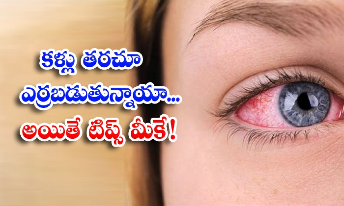 How To Get Rid Of Red Eyes Red Eyes Home Remedies Latest News-TeluguStop.com