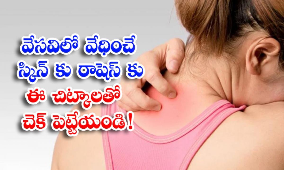 Skin Rashes Summer Skin Care Latest News Health-వేసవిలో వేధించే స్కిన్ రాషెస్కు ఈ చిట్కాలతో చెక్ పెట్టేయండి-Latest News - Telugu-Telugu Tollywood Photo Image-TeluguStop.com