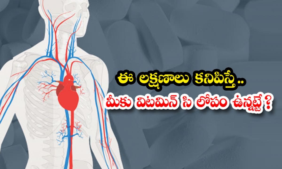 Symptoms Of Vitamin C Deficiency In The Body-ఈ లక్షణాలు కనిపిస్తే.. మీకు విటమిన్ సి లోపం ఉన్నట్టే-Latest News - Telugu-Telugu Tollywood Photo Image-TeluguStop.com