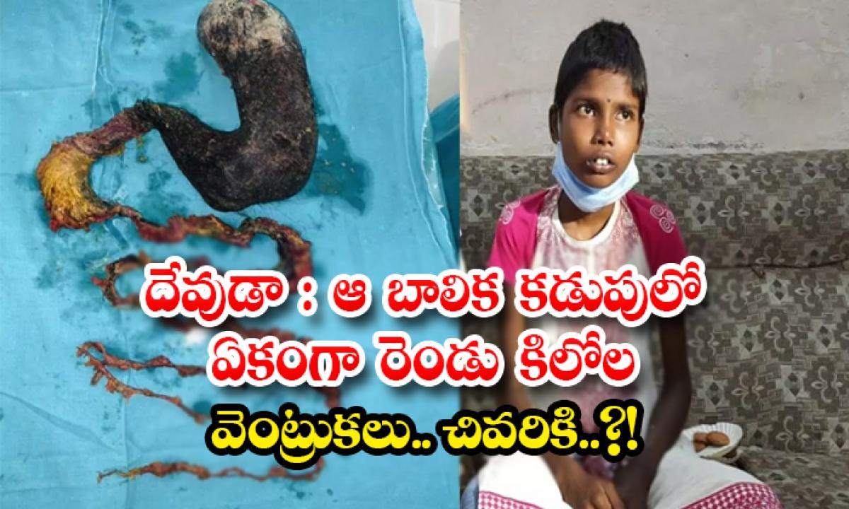 Two Kilos Hair Found In The Stomach Of Hyderabad Girl Poojitha-దేవుడా: ఆ బాలిక కడుపులో ఏకంగా రెండు కిలోల వెంట్రుకలు.. చివరికి..-General-Telugu-Telugu Tollywood Photo Image-TeluguStop.com