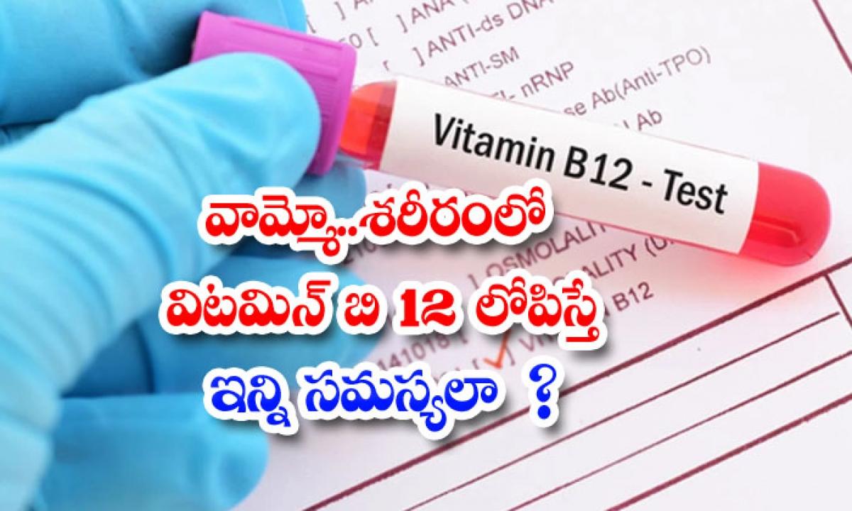 Risky Health Problems When Vitamin B12 Deficiency-వామ్మో..శరీరంలో విటమిన్ బి12 లోపిస్తే ఇన్ని సమస్యలా-Latest News - Telugu-Telugu Tollywood Photo Image-TeluguStop.com