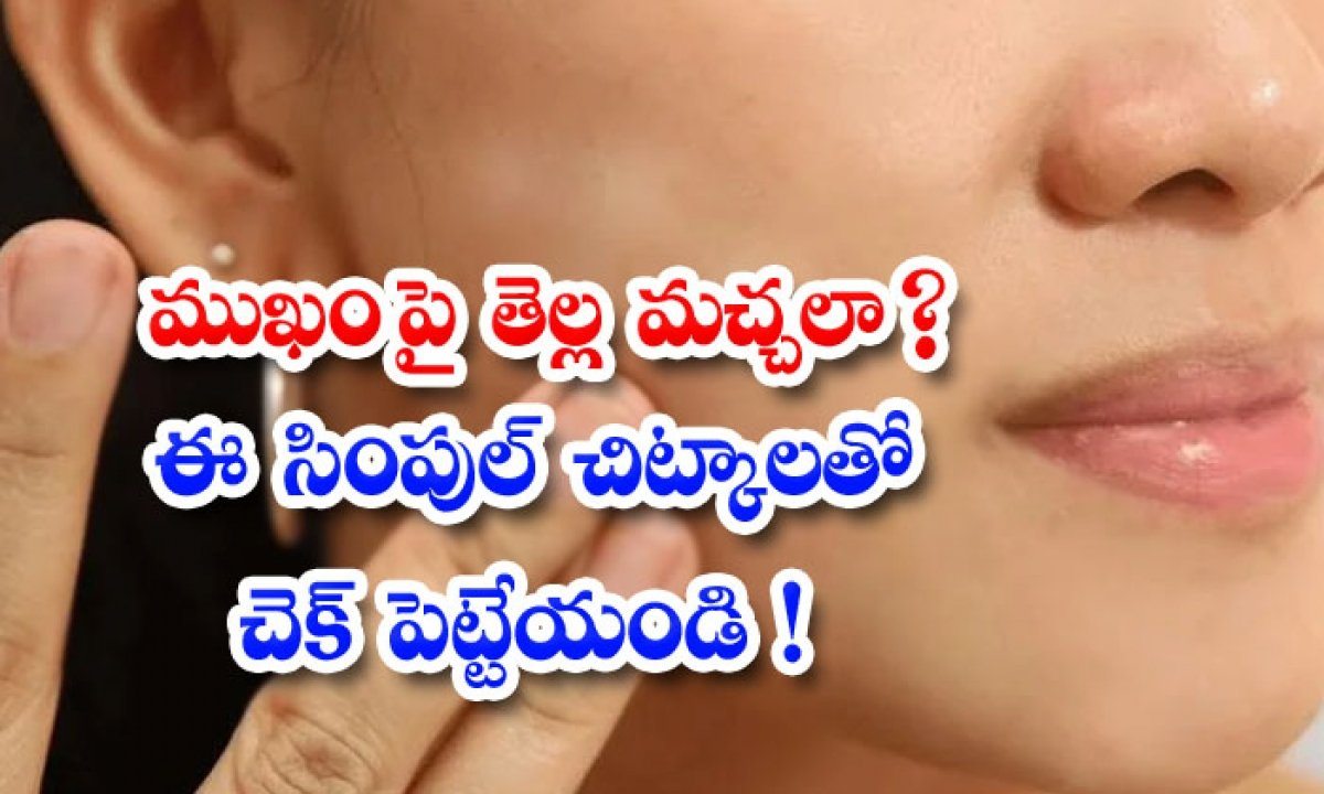 Skin Care Skin Care Tips Beauty Beauty Tips Home Remedies-ముఖంపై తెల్ల మచ్చలా ఈ సింపుల్ చిట్కాలతో చెక్ పెట్టేయండి-Latest News - Telugu-Telugu Tollywood Photo Image-TeluguStop.com