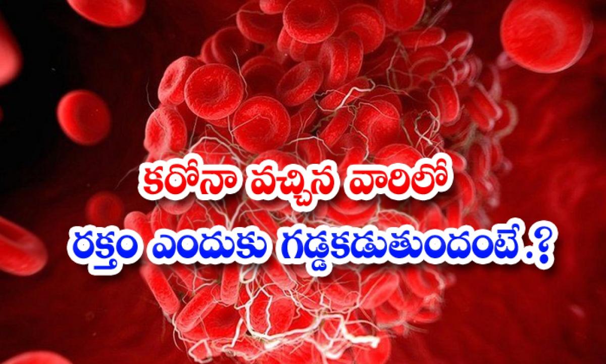 Why The Blood Clots In Those Who Come To The Corona-కరోనా వచ్చిన వారిలో రక్తం ఎందుకు గడ్డకడుతుందంటే.. -Breaking/Featured News Slide-Telugu Tollywood Photo Image-TeluguStop.com