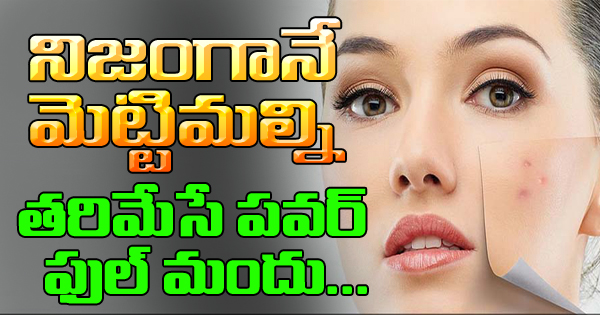 Isotroin Tablets – Powerful Weapon To Control Acne-TeluguStop.com