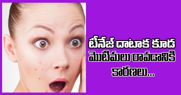 Even After Teenage, Pimples May Occur For These Reasons-Even After Teenage, Pimples May Occur For These Reasons-Telugu Health - తెలుగు హెల్త్ టిప్స్ ,చిట్కాలు-Telugu Tollywood Photo Image-TeluguStop.com
