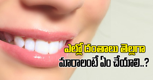 Super Home Remedies For Yellow Teeth-TeluguStop.com