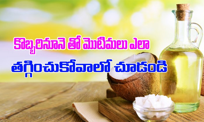 Look How You Can Treat Pimples By Using Coconut Oil-TeluguStop.com