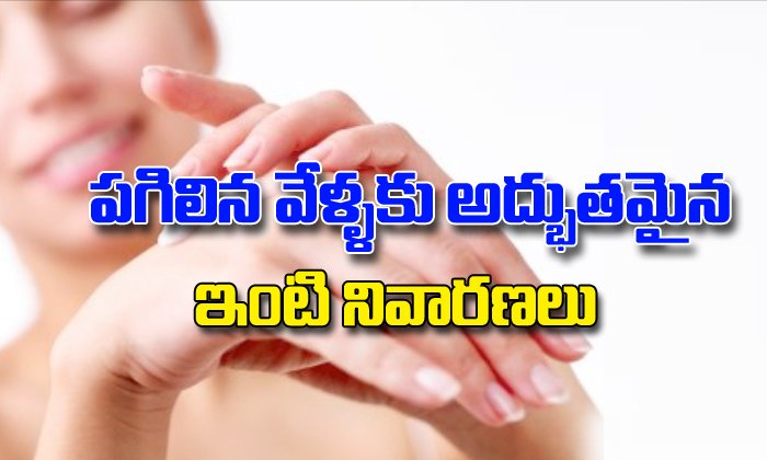 Home Remedies For Cracked Fingers-TeluguStop.com