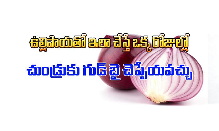 How To Treat Dandruff With Onion Juice-TeluguStop.com