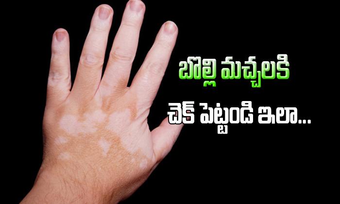 Vitiligo Controled With Only Ayurveda Treatment-Vitiligo Controled With Only Ayurveda Treatment-Telugu Health-Telugu Tollywood Photo Image-TeluguStop.com