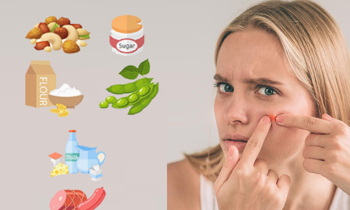 Foods That Can Cause Acne-TeluguStop.com