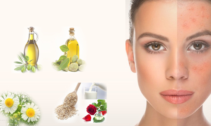 Home Remedies For Rosacea-రొజేషియా వ్యాధిని తగ్గించుకోవటానికి అద్భుతమైన ఇంటి చిట్కాలు-Telugu Health-Telugu Tollywood Photo Image-TeluguStop.com