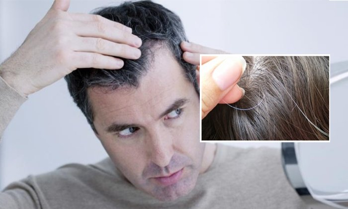 Dos And Donts Of Whitehair-TeluguStop.com