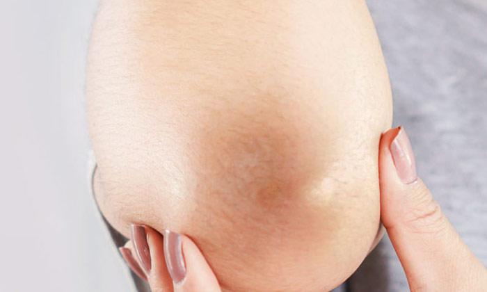 Home Remedies For Dark Elbows-TeluguStop.com