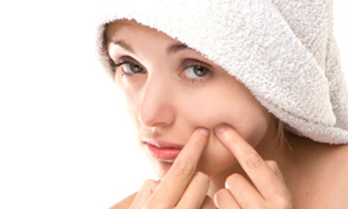 Pudina Face Pack For Pimples And Blackheads-బ్లాక్ హెడ్స్,మొటిమల మచ్చలను తొలగించటానికి పుదీనా పేస్ పాక్స్-Telugu Health-Telugu Tollywood Photo Image-TeluguStop.com