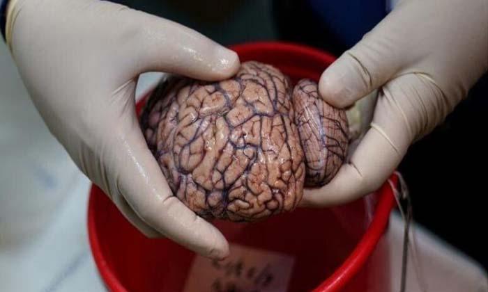 Phillip Man Arrested Ate Woman Brain-TeluguStop.com