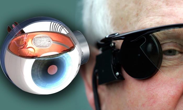 Melbourne Scientists Invented Bionic Eye Vision-TeluguStop.com