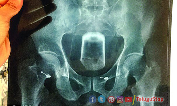 Beer Glass Mans Rectum Chinese Doctors Surgery-TeluguStop.com