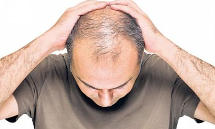 Having Trouble With Baldhead But Follow Like This-TeluguStop.com