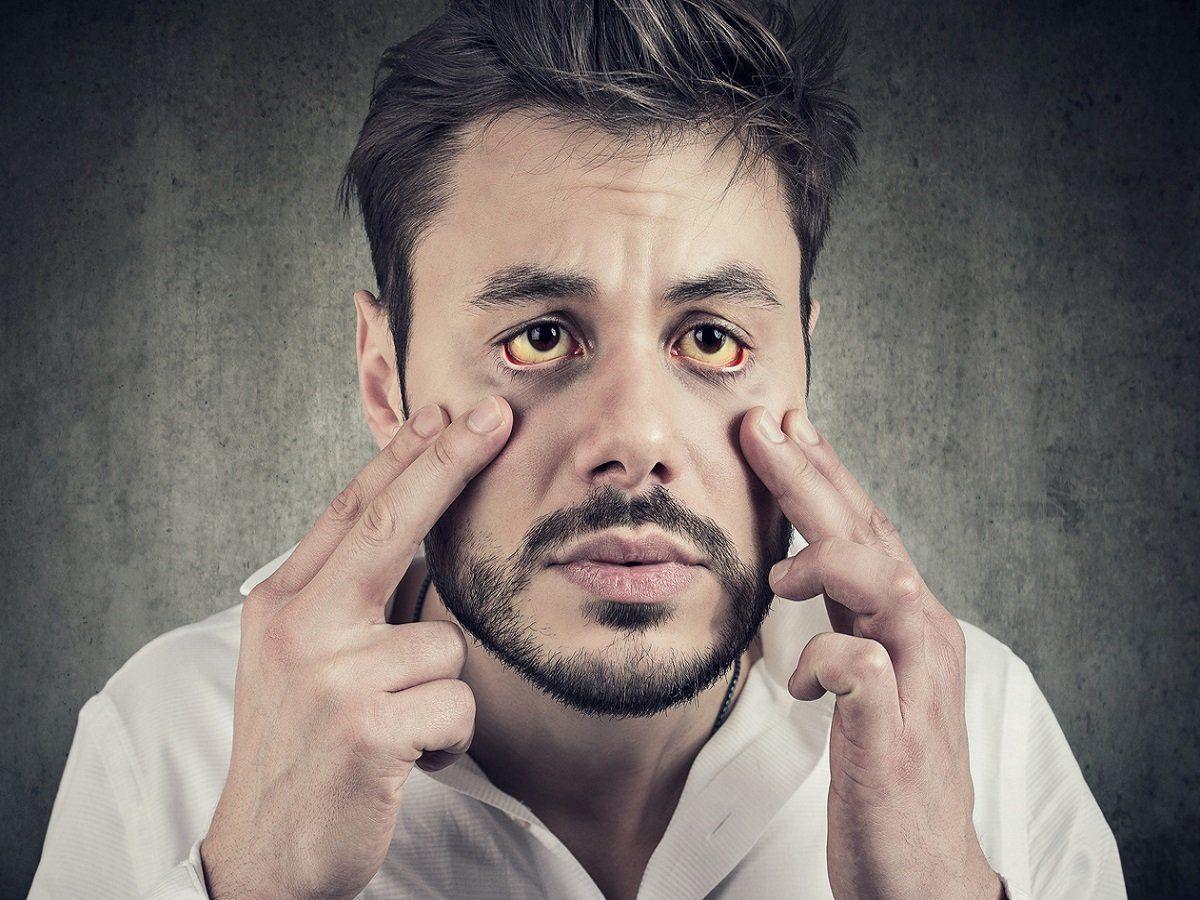 Men Beware A New Disease That Only Affects Men-TeluguStop.com