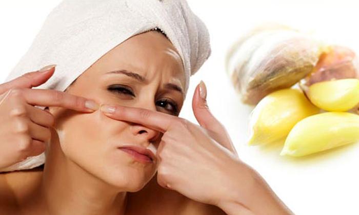 Garlic Helps To Reduce Dark Spots On Face-TeluguStop.com
