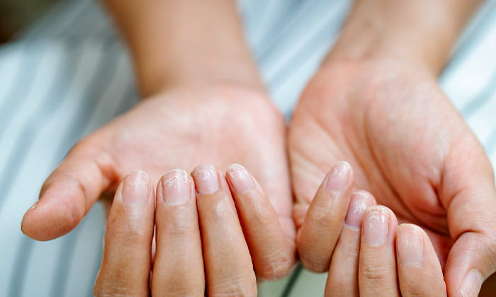 You Have To Know These Things By The Size Of Your Nails-TeluguStop.com