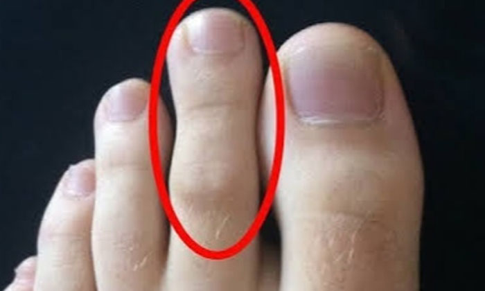 Do You Know What Happens If The Next Toe Is Longer Than The Big Toe-TeluguStop.com