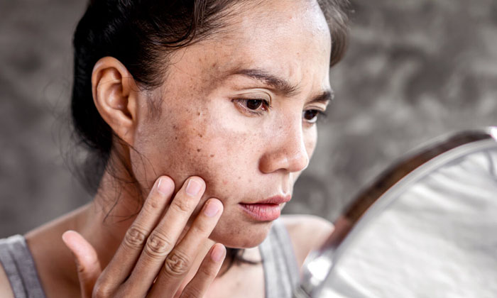 Beauty Benefits Of Mustard Oil-TeluguStop.com