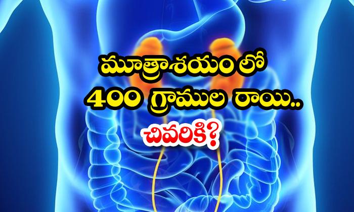 TeluguStop.com - 400 Grams Of Stone In The Bladder