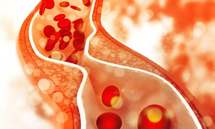 Anjeer Fruit Helps To Reduce Over Weight-TeluguStop.com